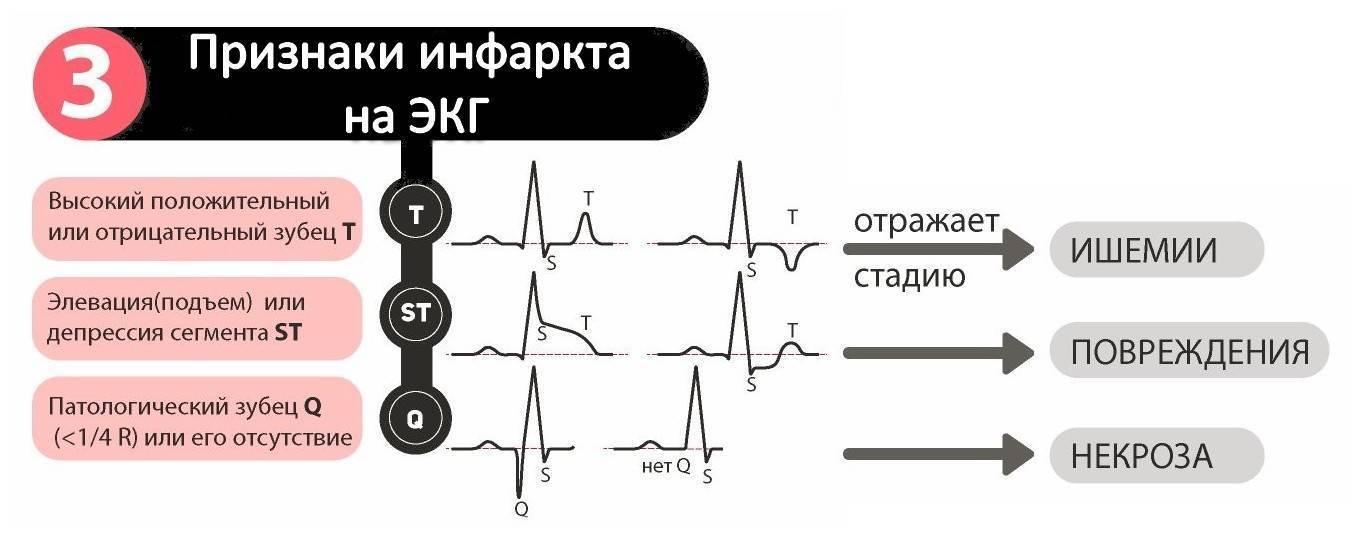 Экг ребенку — расшифровка, норма в таблице, нарушения работы сердца на кардиограмме