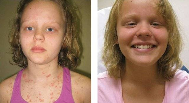 Псориаз у детей: 110 фото болезни и видео описание особенностей лечения у детей