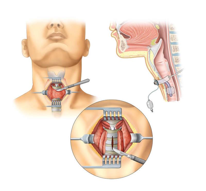 Отек горла у ребенка: симптомы, оказание первой помощи и методы лечения для восстановления гортани | konstruktor-diety.ru