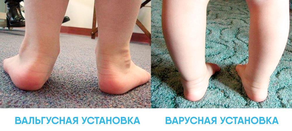 Вальгусная деформация стопы у детей: причины и лечение