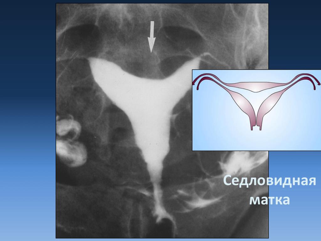 Седловидная матка при беременности: причины, последствия, лечение / mama66.ru