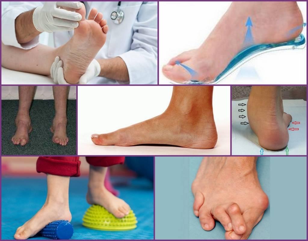 Как лечить детское плоскостопие. массаж и физкультура при плоскостопии