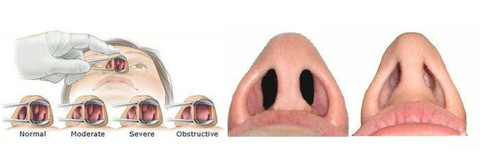 Отек слизистой носа: лечение - как снять отек носа?