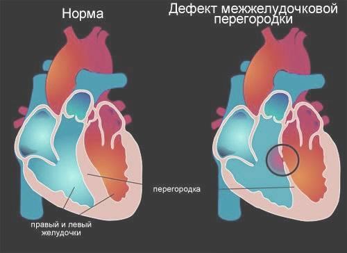 Субаортальный дефект межжелудочковой перегородки — заболевания сердца