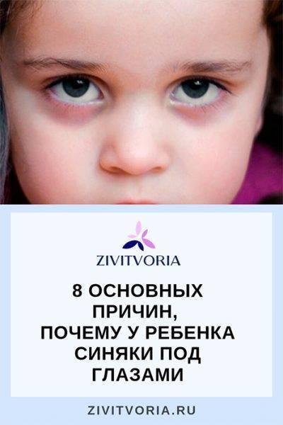 Темные круги под глазами у ребенка – причины и лечение?
