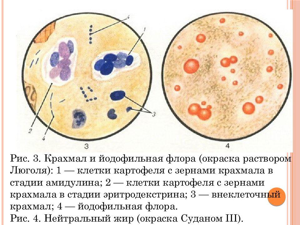 Причины, признаки и лечение йодофильной флоры в кале у взрослого человека
