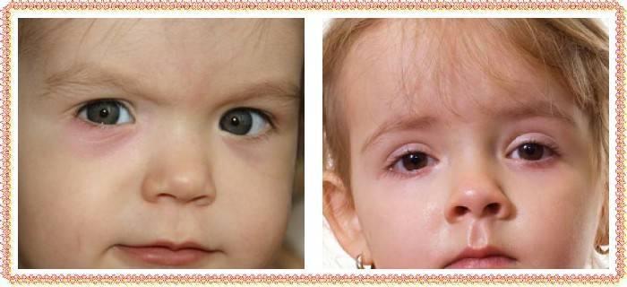 Мешки под глазами у ребенка причины и лечение, почему и что делать
