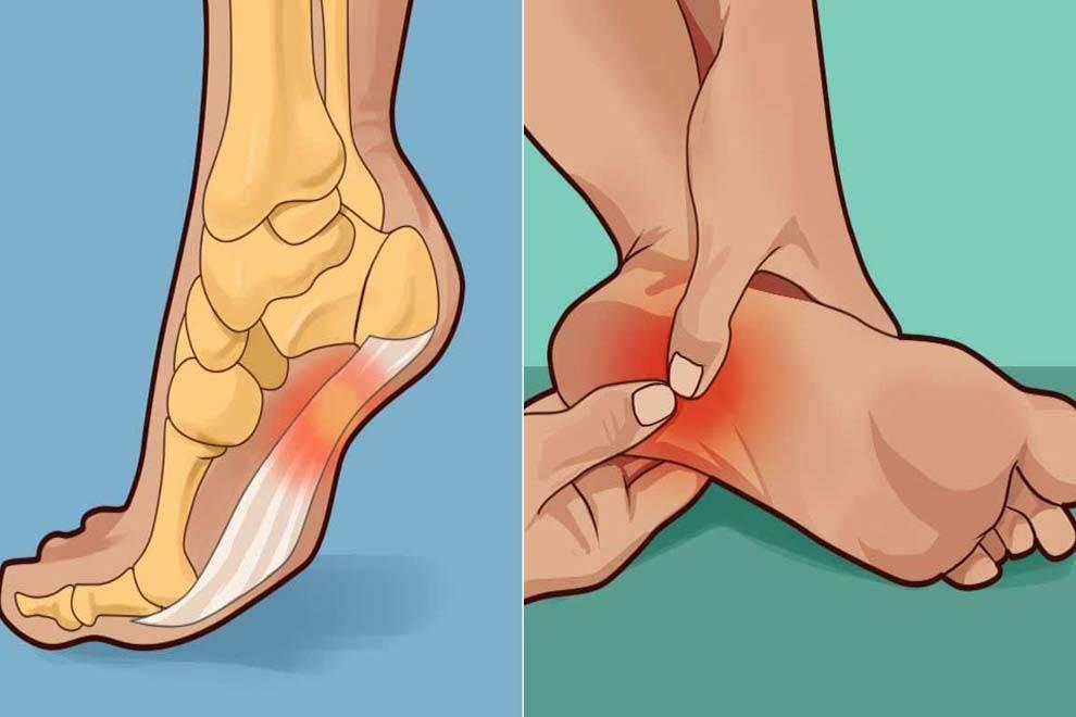 Болит пятка (больно наступать): причины и лечение