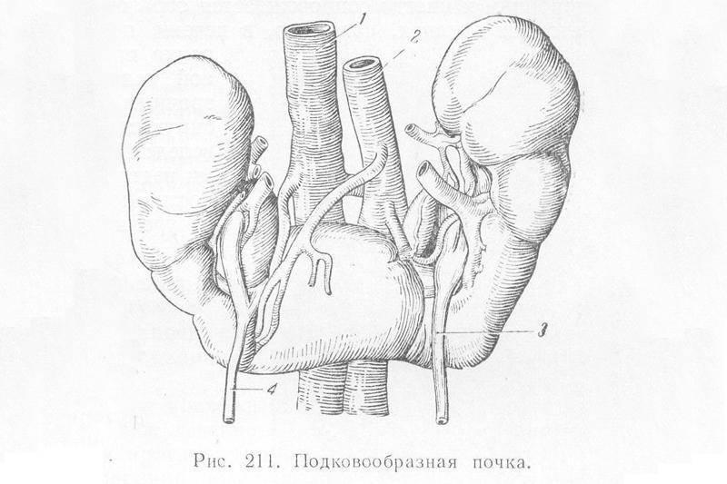Гипоплазия правой или левой почки у ребенка: симптомы, причины, способы лечения и операция