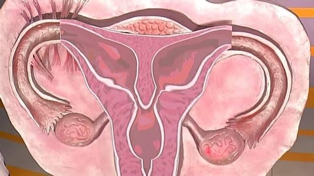 Можно ли забеременеть при опущении матки, и чем это опасно?