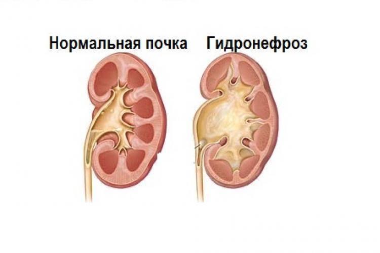 Гидронефроз у детей – лечение, симптомы, причины, прогноз