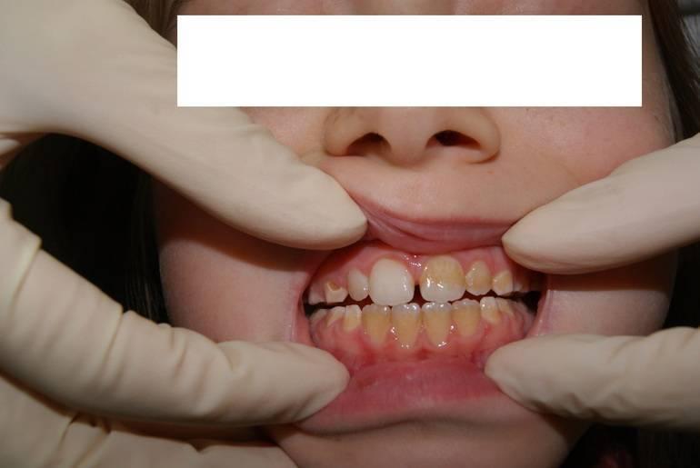 Коричневый налет на зубах у ребенка: причины появления, способы лечения и профилактика