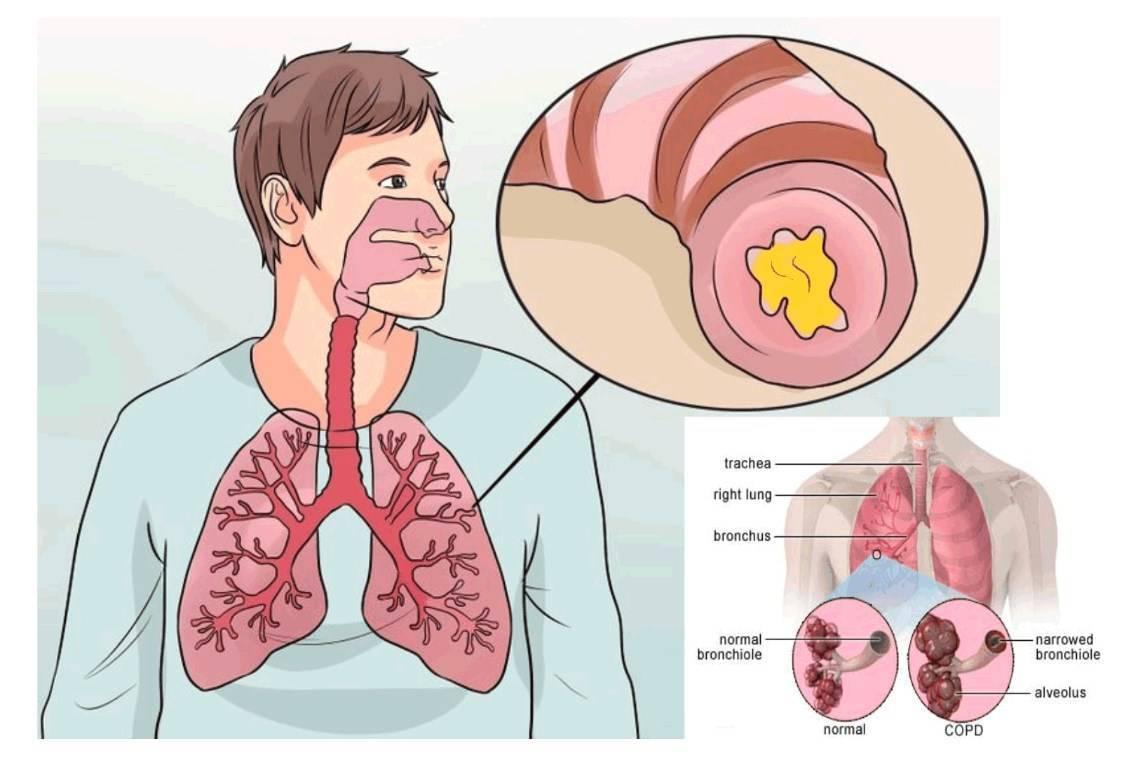 Симптомы трахеита у детей, лечение острой и хронической форм заболевания