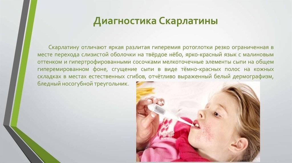 Скарлатина у детей - фото, симптомы и лечение, профилактика | здрав-лаб