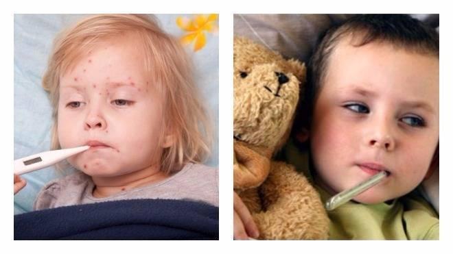 Температура при аллергии у детей: сколько дердится и что делать