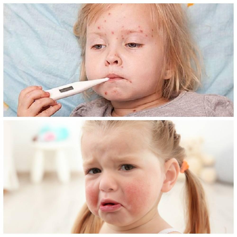 ❶ как лечить аллергию на пылевого клеща: алгорим, порядок действий, профилактика