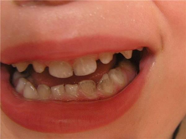 Желтые пятна на зубах у ребенка: почему появляются и как лечить