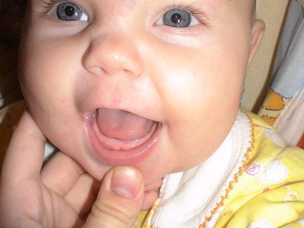 Нужно ли лечить кашель при прорезывании зубов?