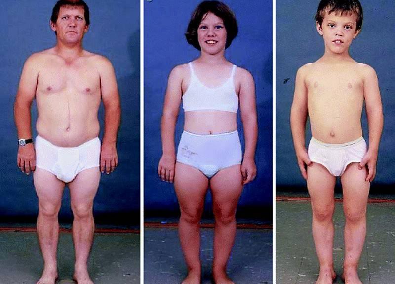 Размер яичек у мальчиков и мужчин (нормы узи) - диагностер