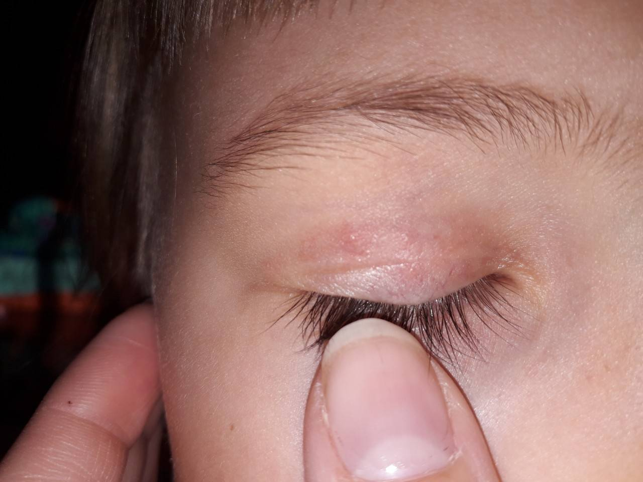 У ребенка на глазу прыщик - педиатор