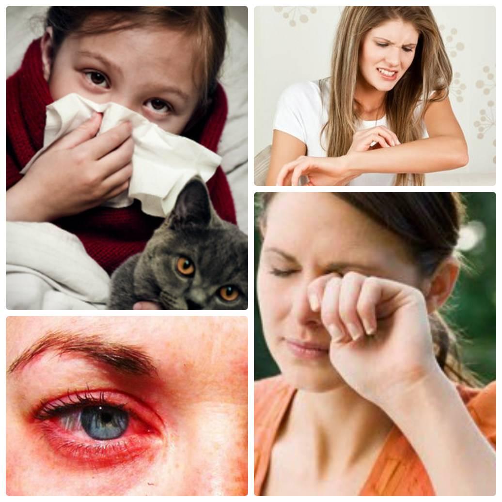 Симптомы аллергии на шерсть животных у грудничков и детей старше 1 года