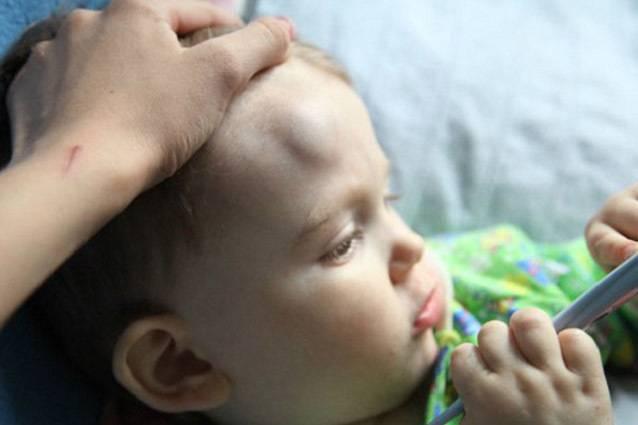 Что делать, если новорожденный ребенок ударился головой