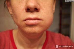 Может ли опухнуть щека при прорезывании зубов у ребенка - лечение.ру