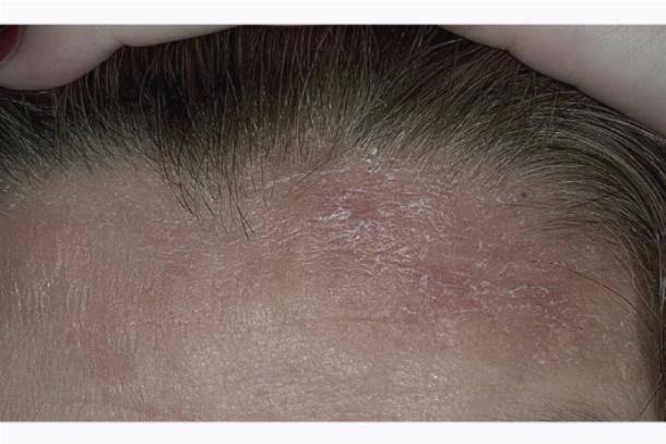Себорея на голове у ребенка: фото, симптомы, диагностика и лечение