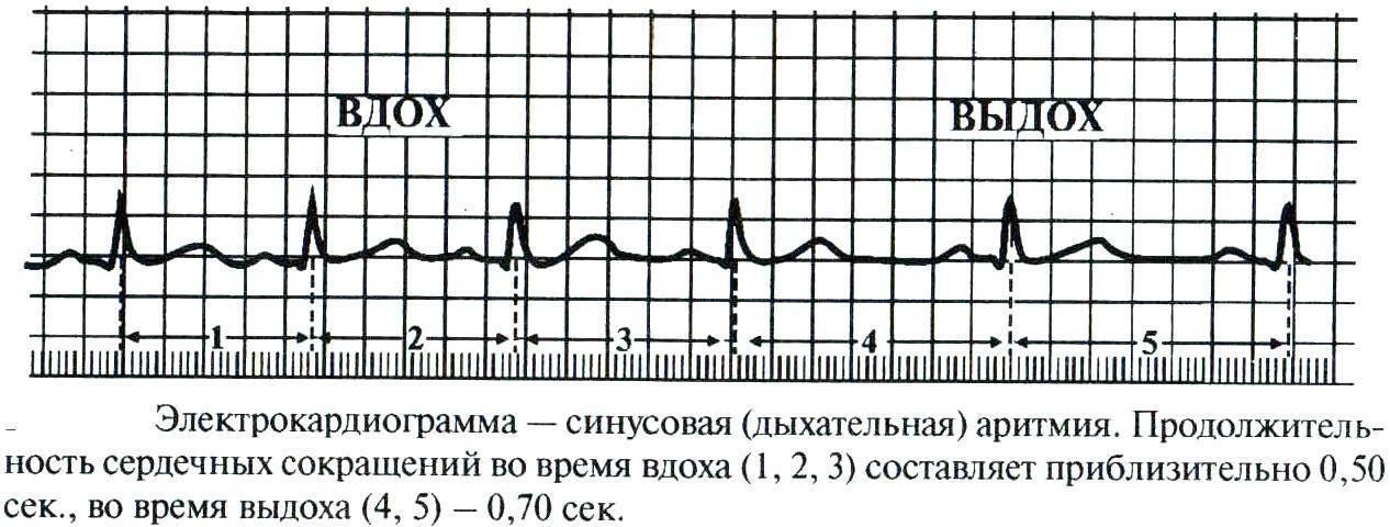 Синусовая аритмия у подростка 17 лет