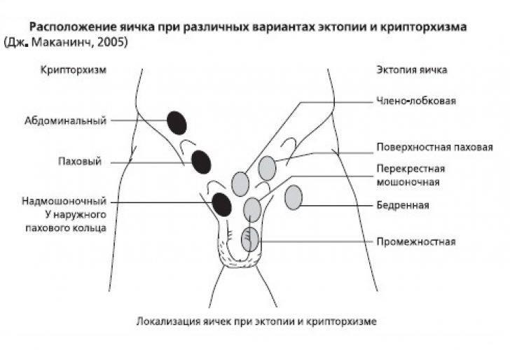 Размер яичек у мальчиков и мужчин (нормы узи)