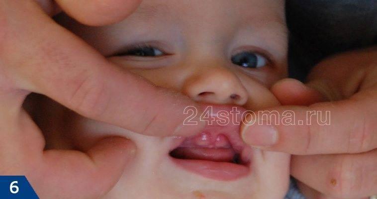 Гематома на десне при прорезывании зубов | стоматологический портал