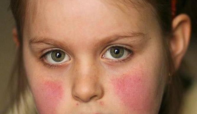 Экзема у ребенка: причины, симптомы, лечение