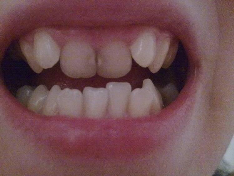 Что делать, если у ребенка криво растут зубы?