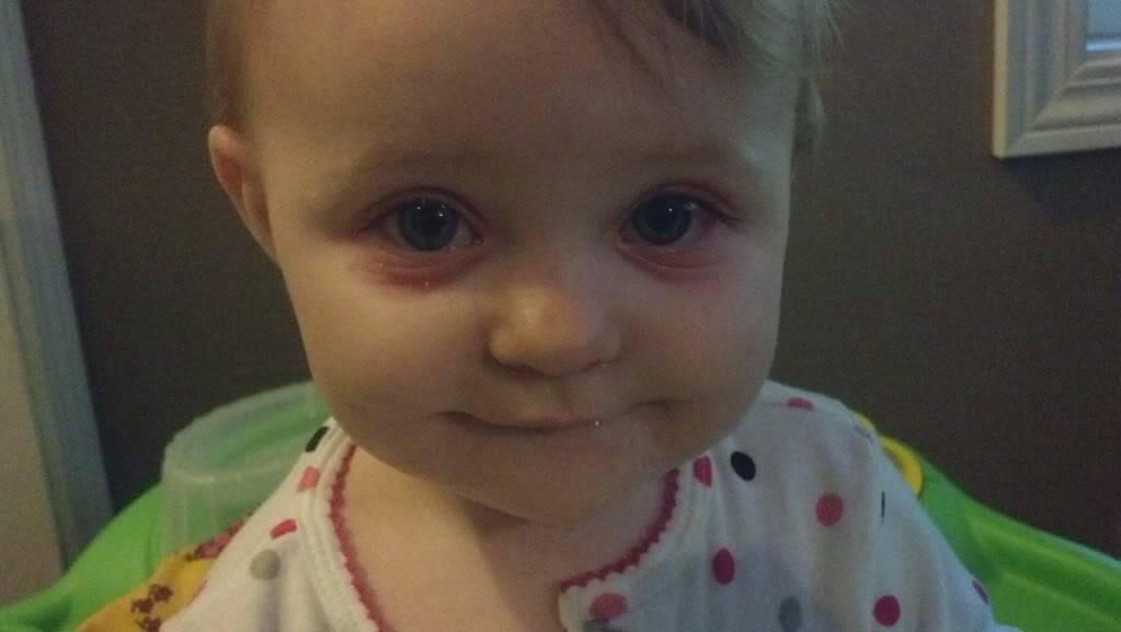 О чем могут говорить синяки под глазами у ребенка?