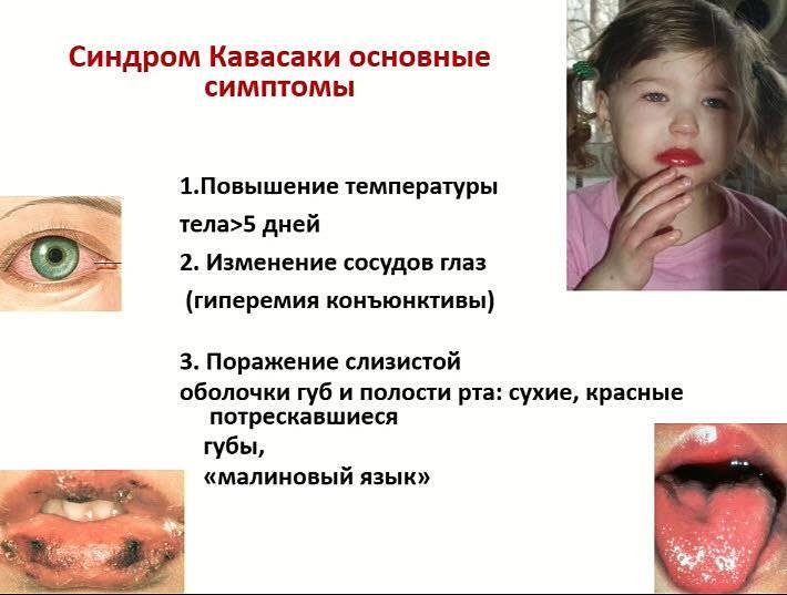 Патогенез болезни кавасаки у детей
