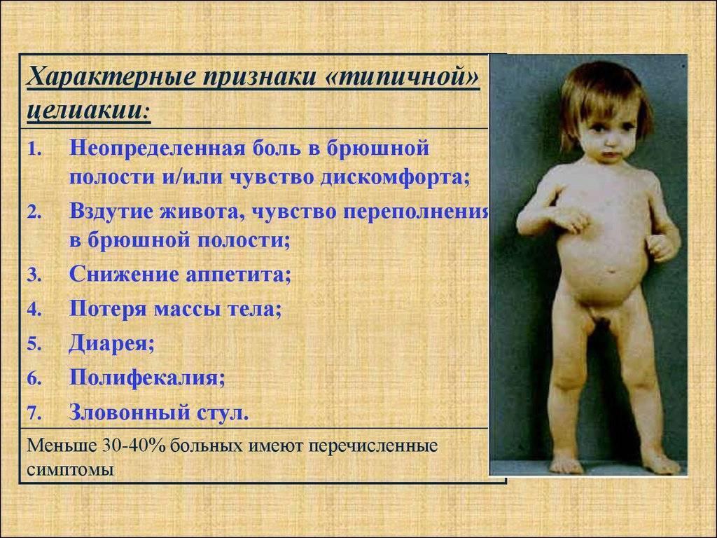 Целиакия у грудничков и детей старшего возраста: симптомы, диагностика и лечение