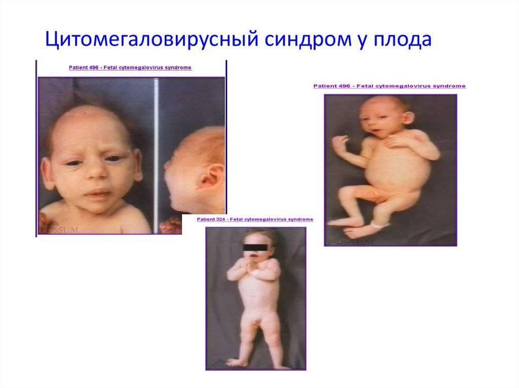 Какова вероятность повторения впр во время беременности?