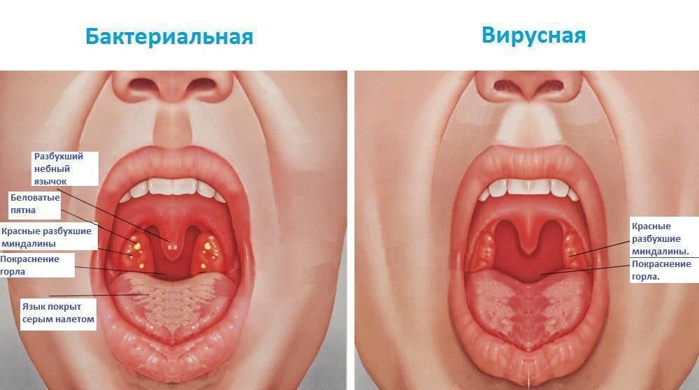 Ангина у детей – симптомы и лечение всех видов заболевания