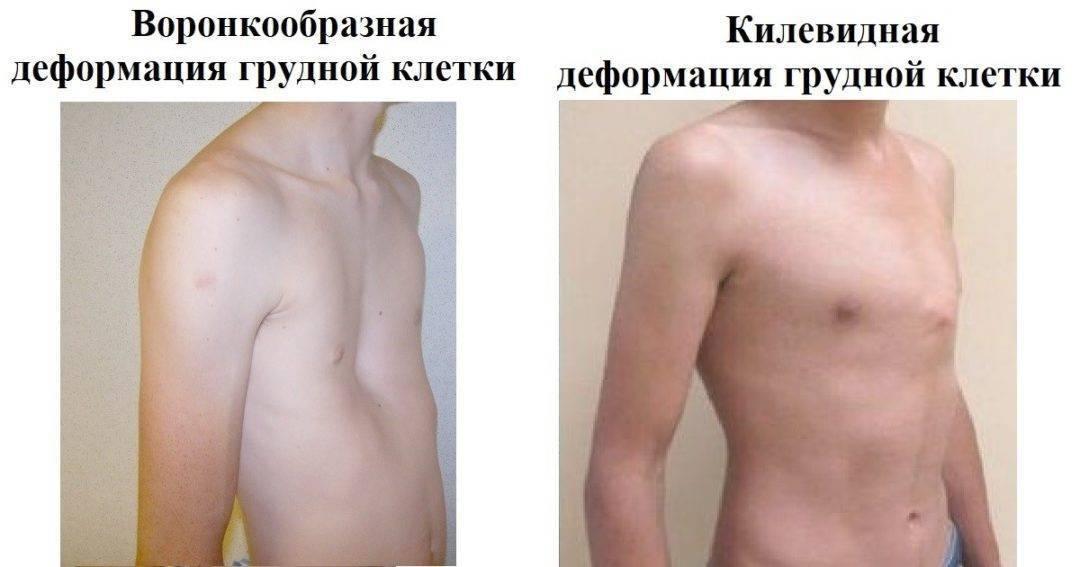Килевидная грудная клетка у ребенка: как исправить деформацию, операция, лечение