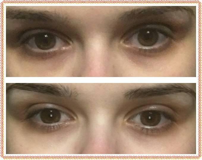 Темные пятна под глазами у ребенка — откуда?