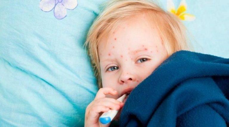 Пузырчатка:болезнь детской кожи