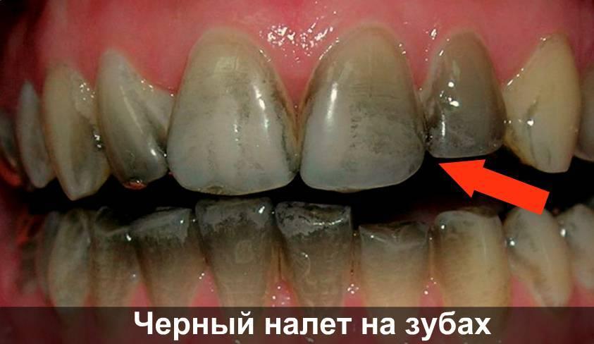 У ребенка темные пятна на зубах причины и что делать