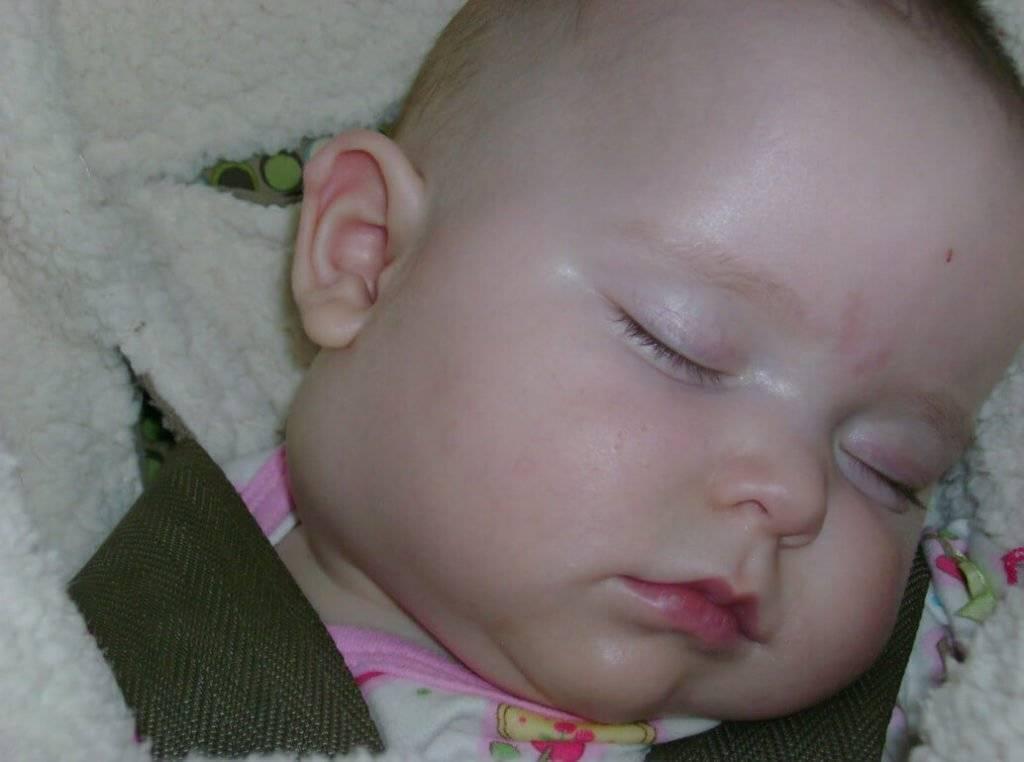 Лимфангиома у детей и новорожденных: симптомы и лечение