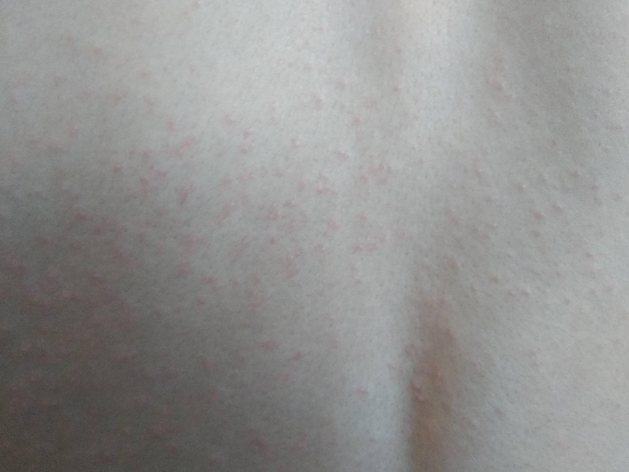 Причины сыпи на животе и ее лечение у взрослых. у ребенка на животе, спине и груди мелкая сыпь: фото прыщиков с описанием возможных патологий мелкая сыпь на животе