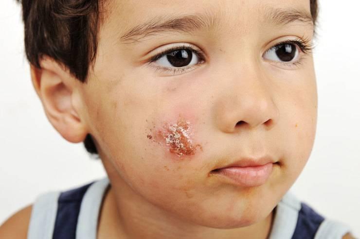 Импетиго у детей и взрослых: стрептококковое, вульгарное и т.д.