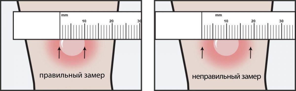 Через сколько дней проверяют манту у ребенка и как измерить ее правильно в домашних условиях (фото)? | прививки | vpolozhenii.com