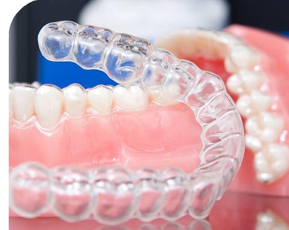 Трейнеры для выравнивания зубов и исправления прикуса у детей и взрослых, фото до и после