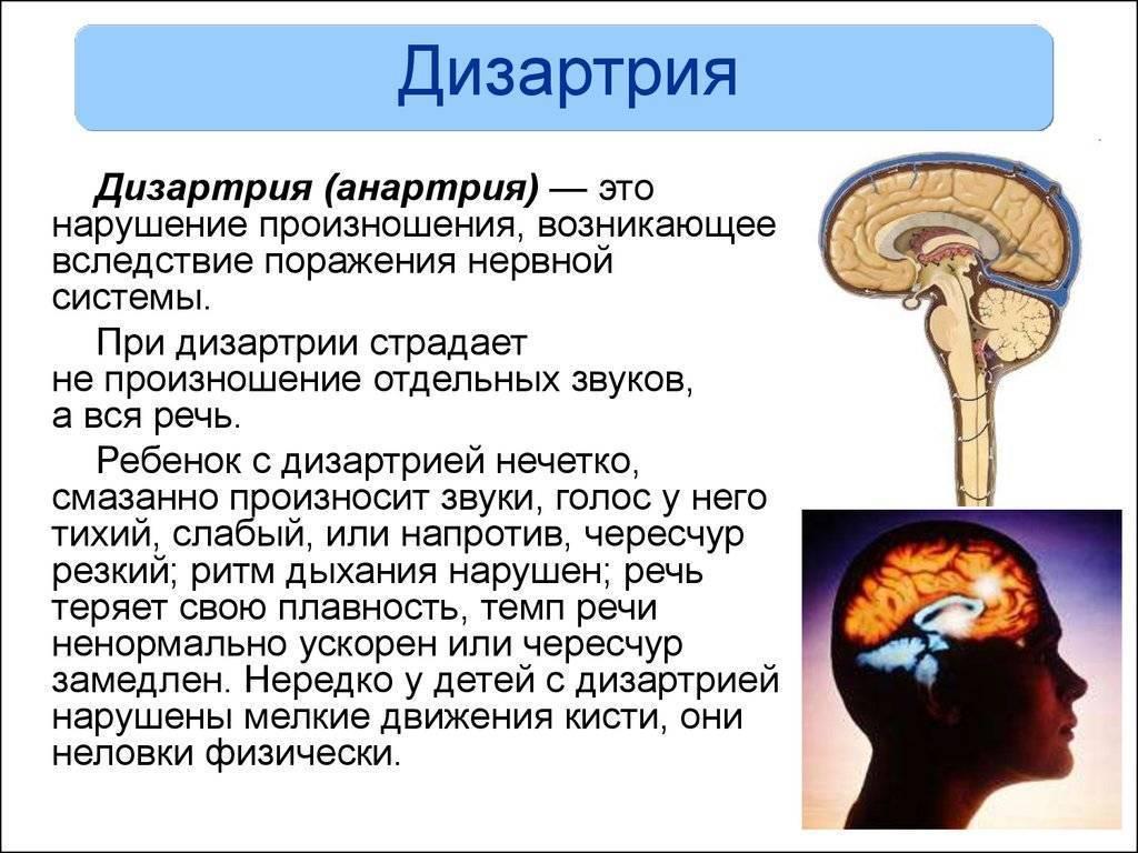 Дизартрия симптомы у детей - правильное лечение