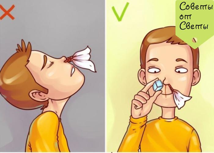 При насморке неприятный запах в носу   первый доктор