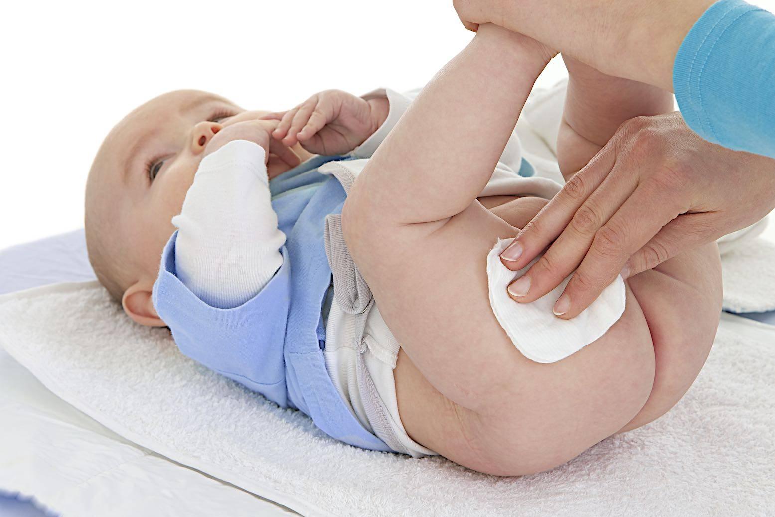 Чем дома можно лечить опрелости у новорожденных?